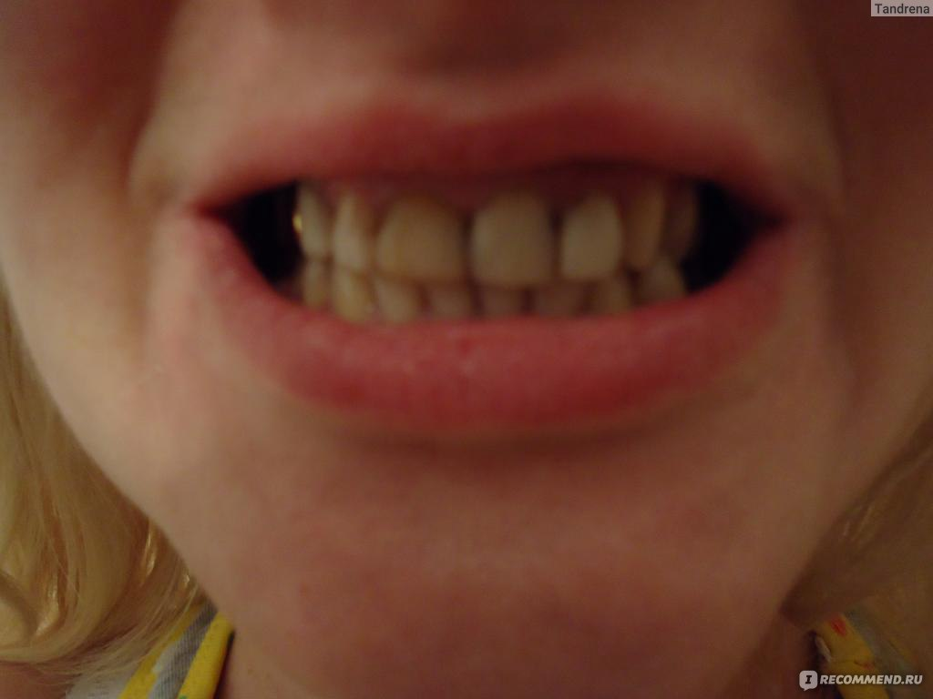про отбеливание зубов