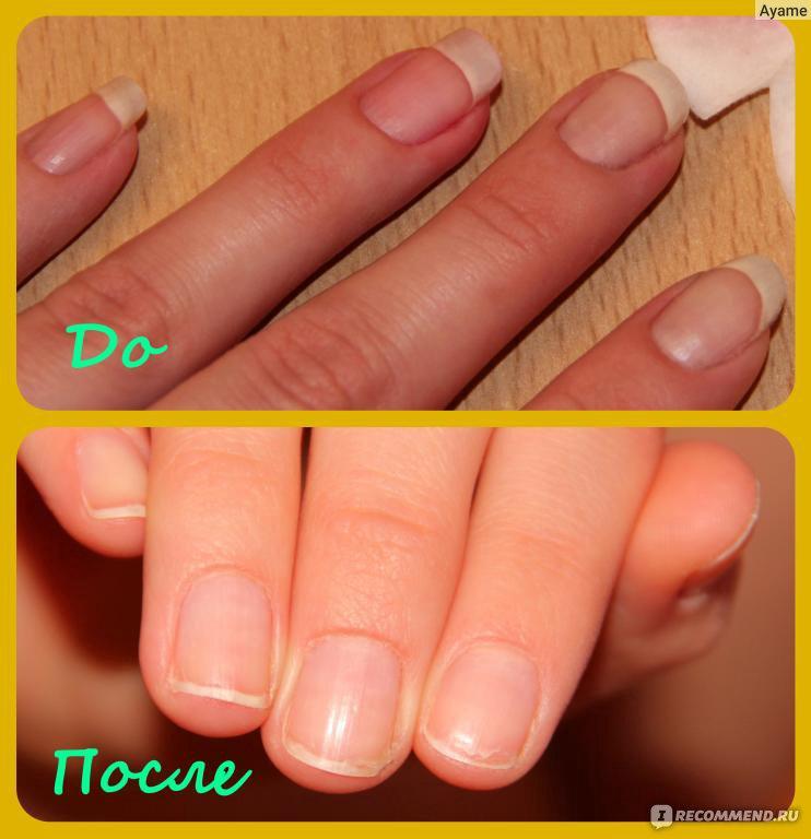 Что делать когда тонкие ногти