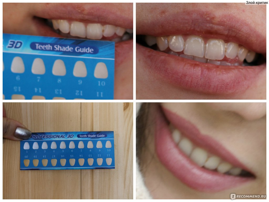 Advanced teeth whitening stripes інструкція із застосування