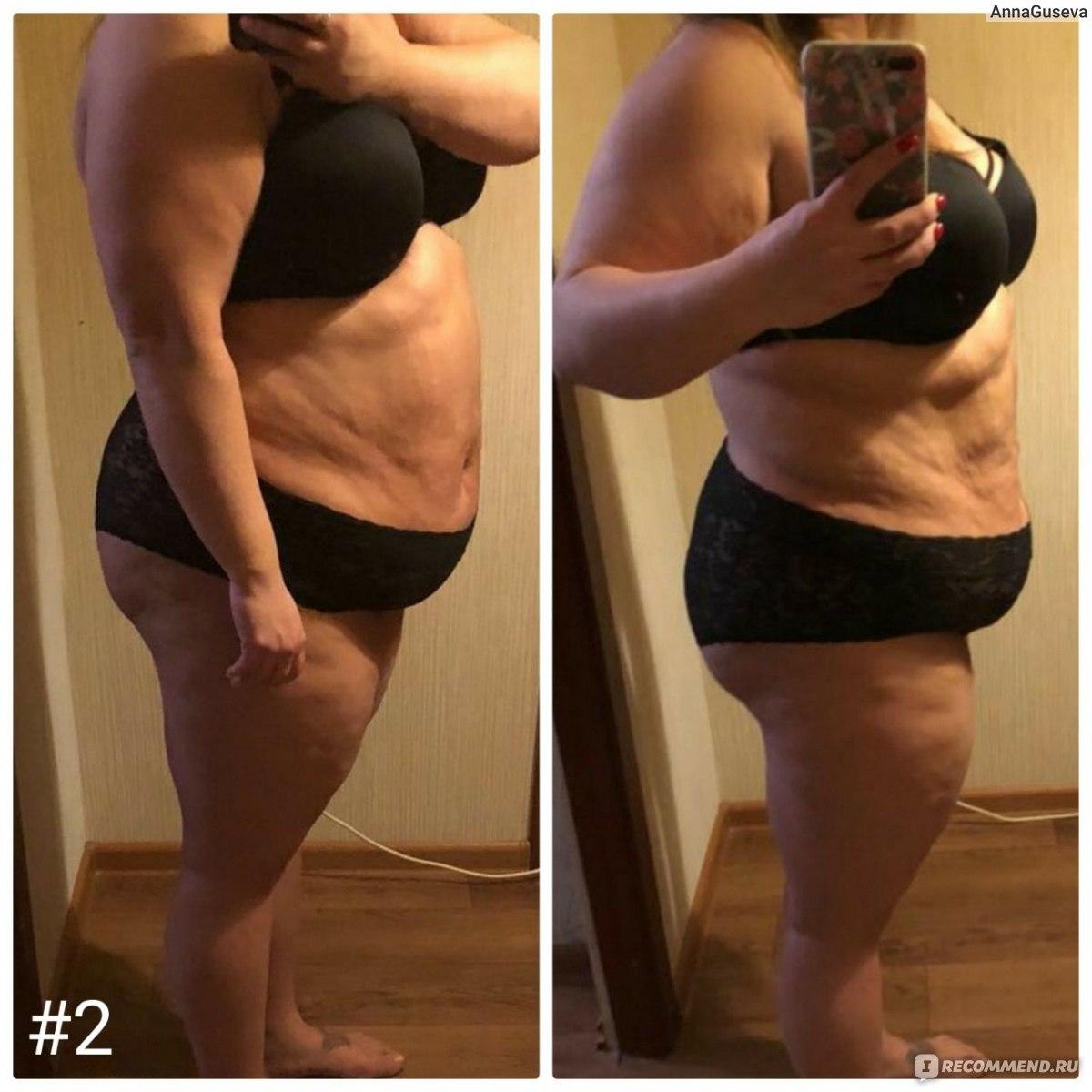Глюкофаж Похудение До И После. ГЛЮКОФАЖ: отзывы