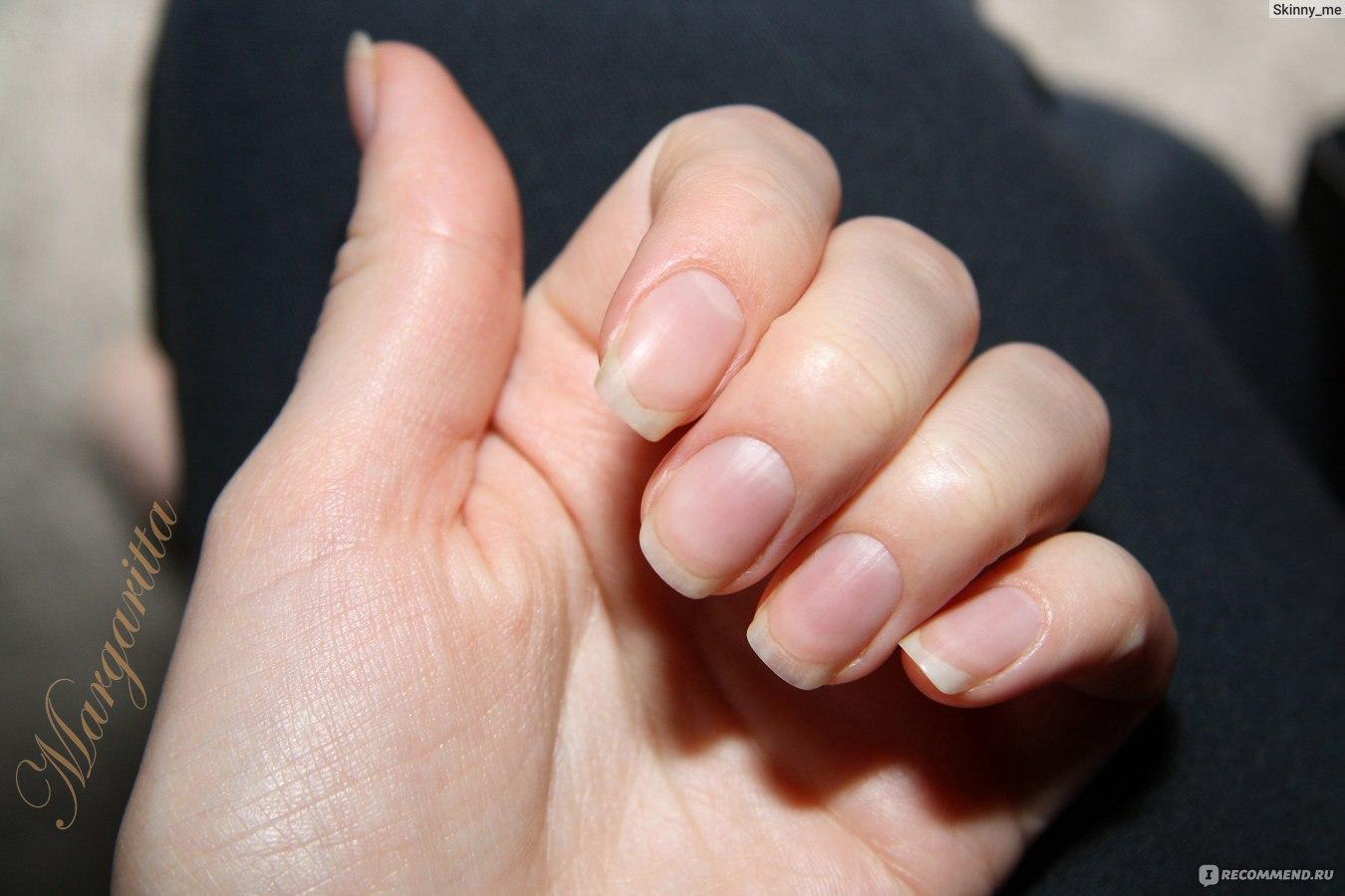 Тонкие и ломкие ногти на руках