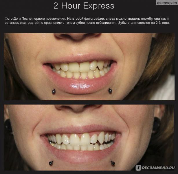 Отбеливание зубов системой opalescence в стоматологии
