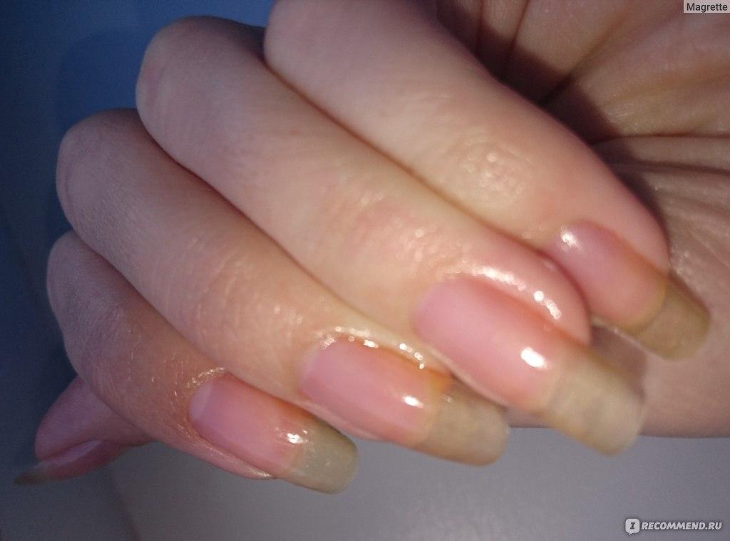 можно мазать глицерин на руки от аллергии