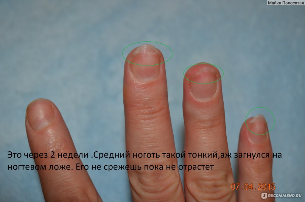 Ногти после снятия наращивания