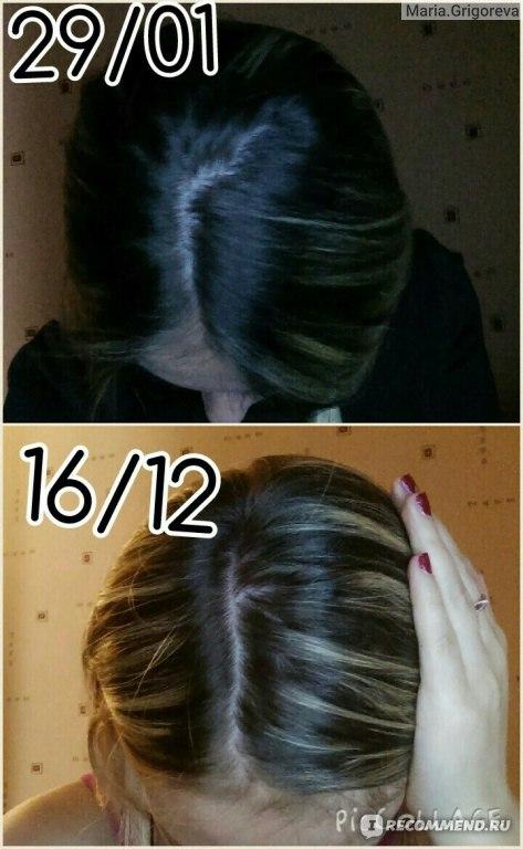 Лечение выпадения мужских волос