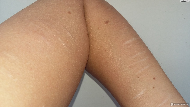 Убрать шрамы на руке в домашних условиях