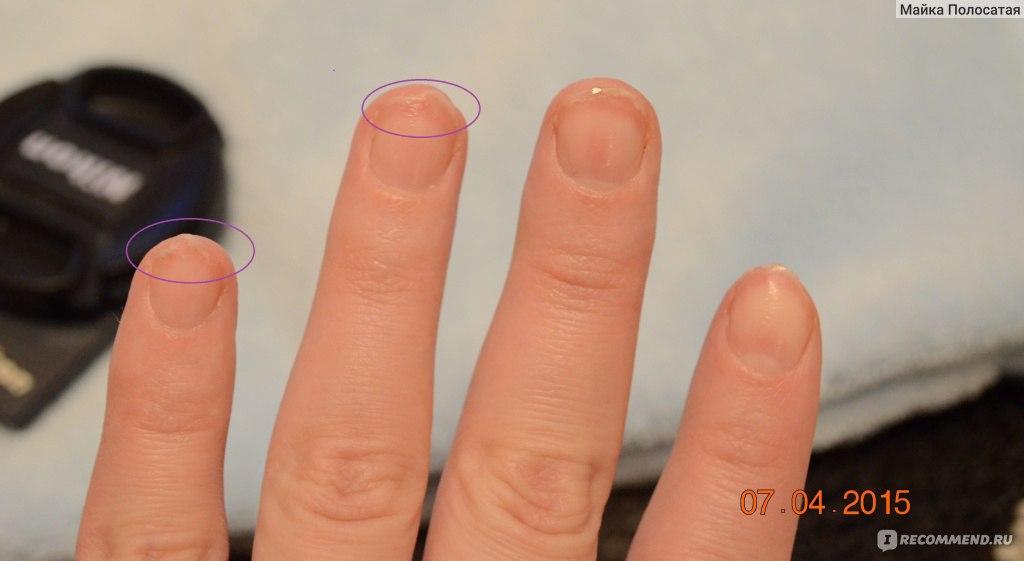 Что бывает с ногтями