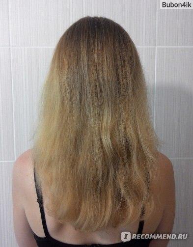 эссенциале в ампулах для роста волос