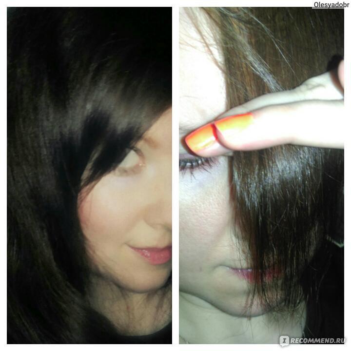 Сильнейшее выпадение волос у женщин