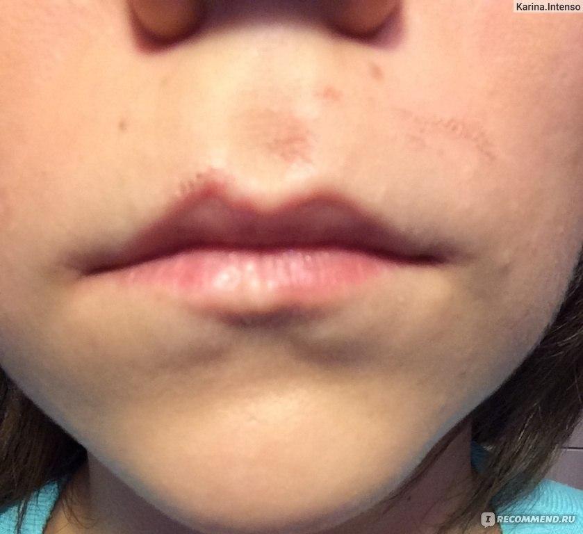 Покалывания над верхней губой 56