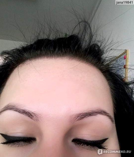 Выпадение волос прыщи на лице причины