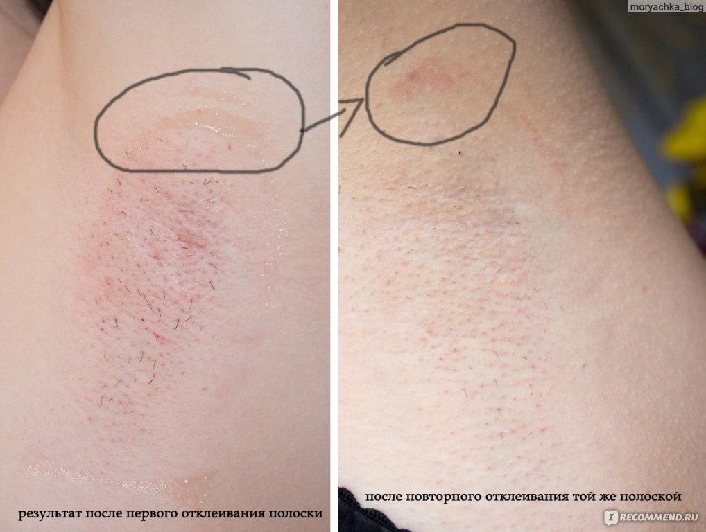 Раздражение после эпиляции волос
