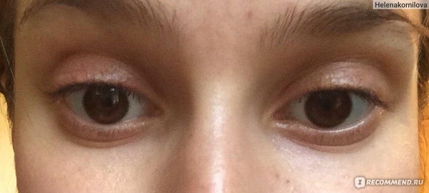 Как убрать синяки под глазами от удара проверенные методы