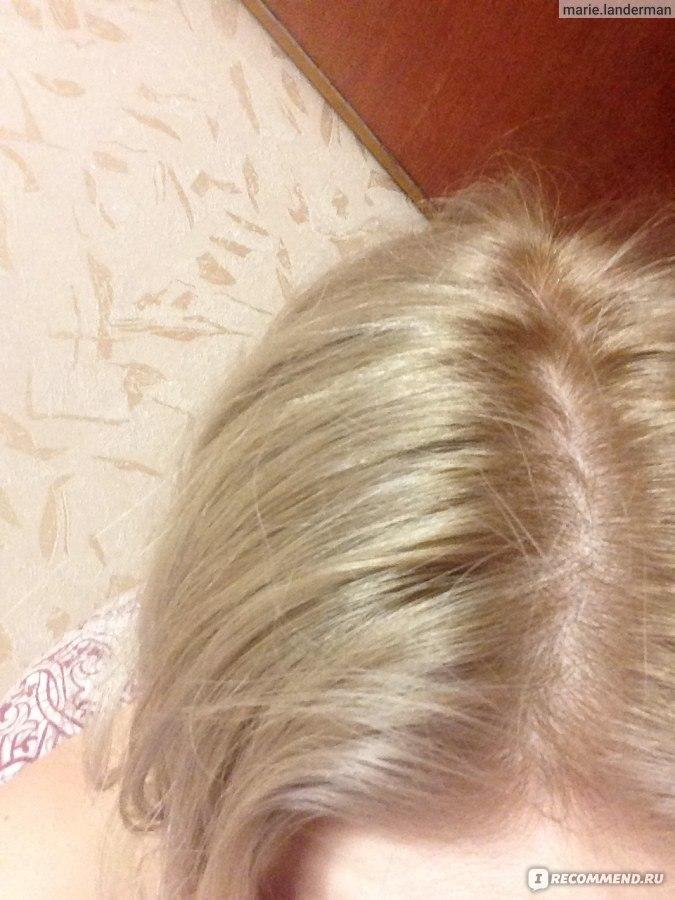 репигментация волос как сделать