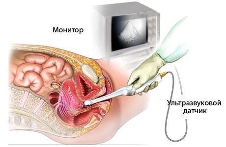 Узи на ранних сроках беременности трансвагинальное