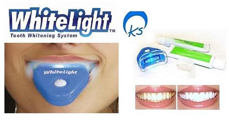 Средства для отбеливания зубов – Домашние и профессиональные отбеливающие средства для зубов