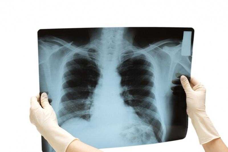 Картинки при рентгенографии