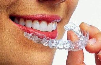 выравнивания зубов винирами до и после