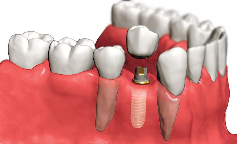 как выглядит имплант зуба фото