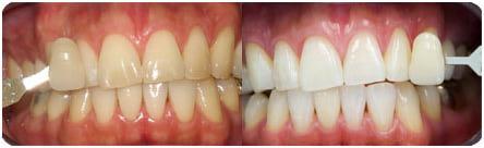 ca955b2f0620f Профессиональная чистка зубов | Отзывы покупателей