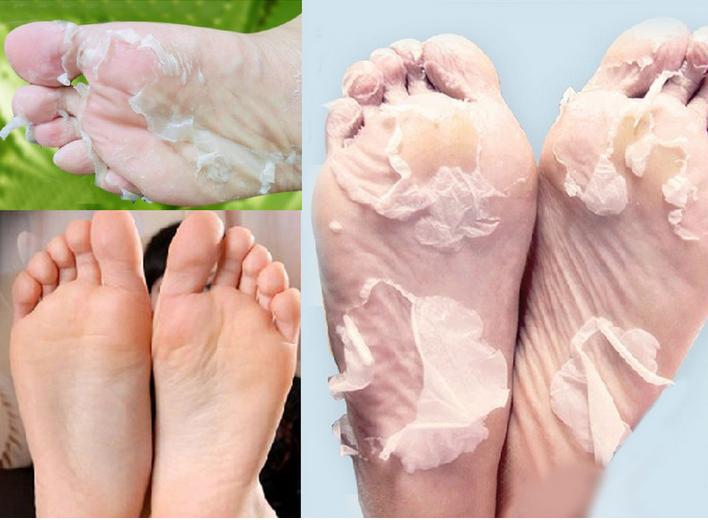 Носочки для педикюра отзывы до и после применения