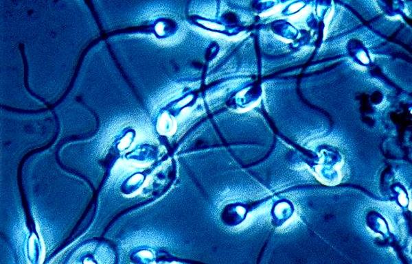 kak-vliyaet-na-spermatozoidi-pnevmoniya