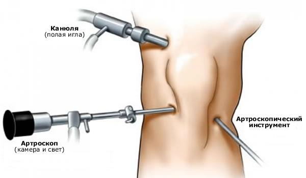 Артроскопическая резекция коленного сустава старинные способы лечения суставов от эскимосов