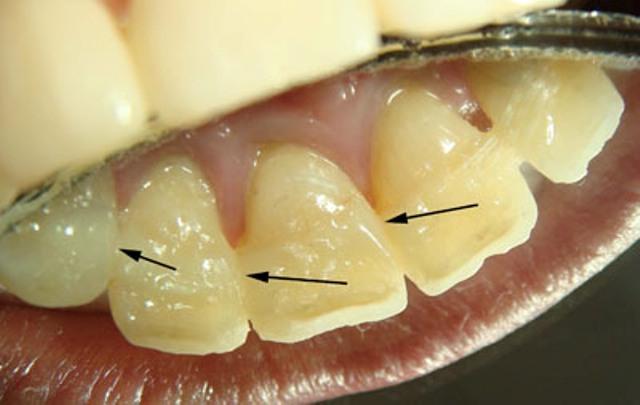 Шинирование передних верхних зубов