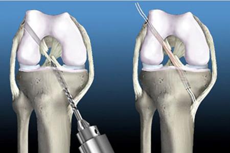Пластика пкс коленного сустава стоимость синовит коленного сустава википедия