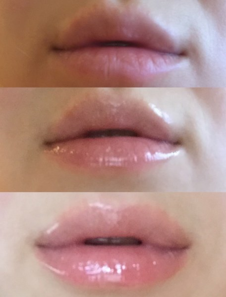 lip injection extreme