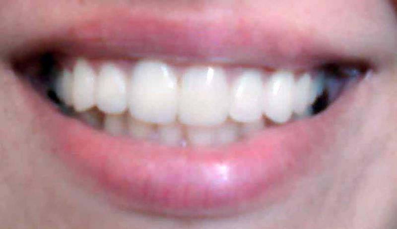 Эстетическая стоматология - художественная реставрация зубов - «Коронка на  основе оксида циркония вместо уродливого наращивания зуба» | Отзывы  покупателей