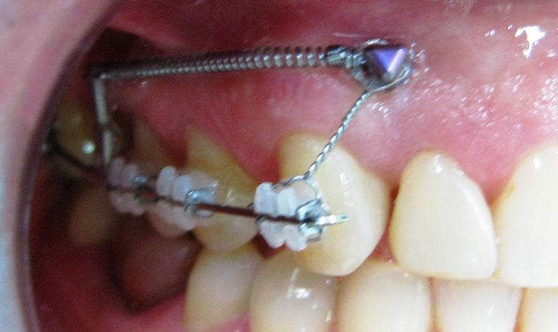 как выровнять зубы после удаления зубов мужрости всей России Бурятия