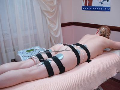 Миостимуляция тела - отзыв