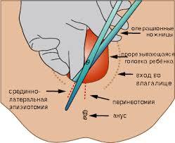Секс после родов и эпизиотомии